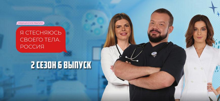 Я стесняюсь своего тела Россия 2 сезон 6 выпуск